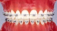 歯にやさしく治療期間も短い最新の矯正装置