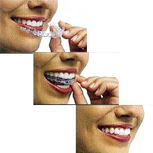 『マウスピース型(カスタムメイド)矯正(歯科)装置(インビザライン)』のメリット