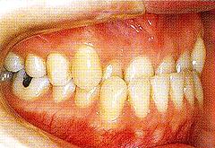 下顎全突治療前1