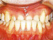 下顎全突治療前2