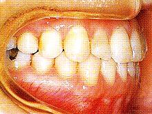 下顎全突治療後1