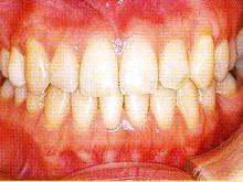 下顎全突治療後2