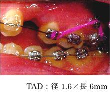 TAD:径1.6×長6mm