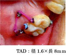 TAD;径1.6×8mm